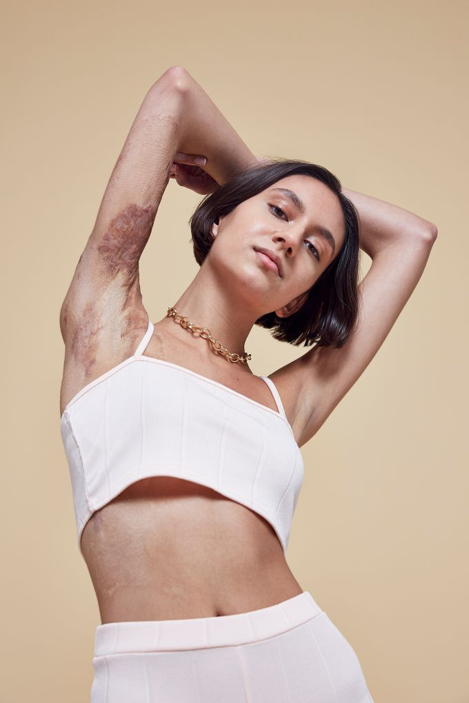 image 2 Missguideds New Campaign Celebrates Skin Imperfections