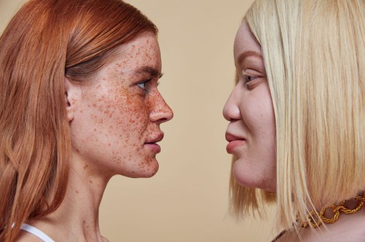 image 8 Missguideds New Campaign Celebrates Skin Imperfections